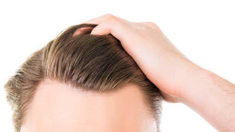 WHAT IS HAIR TRANSPLANTATION?